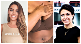 women skin plasters 5